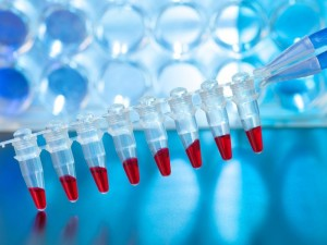 New Blood Test Can Be Used to Check for Brain Injury, Severity of Damage